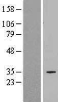 NBL1-16063 - SLC25A34 Lysate