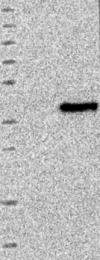 NBP1-84617 - SLC25A36
