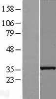 NBL1-16064 - SLC25A36 Lysate