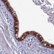 NBP1-93525 - SLC25A37 / Mitoferrin-1