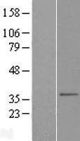 NBL1-16065 - SLC25A38 Lysate