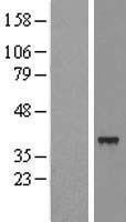 NBL1-16066 - SLC25A39 Lysate