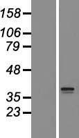 NBL1-16070 - SLC25A44 Lysate