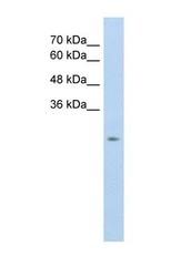 NBP1-59876 - SLC25A45