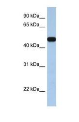 NBP1-59604 - SLC25A46 / TB1