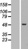 NBL1-16072 - SLC25A46 Lysate