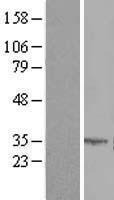 NBL1-16074 - SLC25A6 Lysate