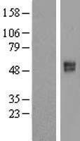 NBL1-16075 - SLC26A11 Lysate