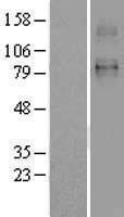 NBL1-16076 - SLC26A2 Lysate
