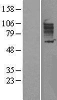 NBL1-16077 - SLC26A3 Lysate
