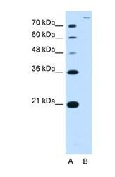 NBP1-59791 - SLC26A5 / Prestin