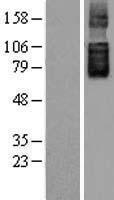NBL1-16078 - SLC26A6 Lysate