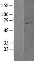 NBL1-16083 - SLC27A6 Lysate