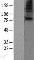 NBL1-16085 - SLC28A1 Lysate