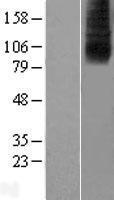 NBL1-16086 - SLC28A2 Lysate