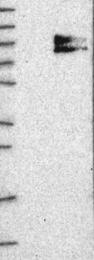 NBP1-84418 - SLC28A3 / CNT3