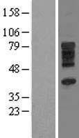 NBL1-16087 - SLC28A3 Lysate
