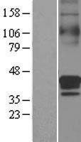 NBL1-16107 - SLC30A3 Lysate