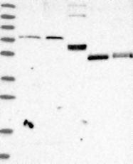 NBP1-82299 - Zinc transporter 5 / SLC30A5