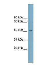 NBP1-59424 - Zinc transporter 8 / SLC30A8