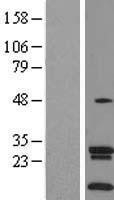 NBL1-16117 - SLC35A4 Lysate