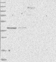 NBP1-83636 - SLC35A5