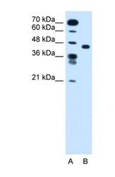NBP1-59386 - SLC35C1 / FUCT1