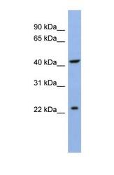 NBP1-69253 - SLC35F1