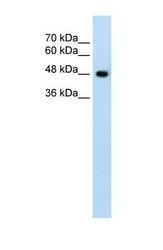 NBP1-59649 - SLC38A1