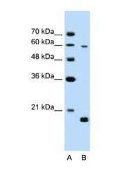 NBP1-55228 - SLC38A4