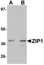 NBP1-76498 - Zinc transporter ZIP1 / SLC39A1