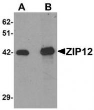 NBP1-76508 - Zinc transporter ZIP12 / SLC39A12