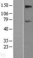 NBL1-16142 - SLC39A12 Lysate
