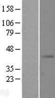 NBL1-16143 - SLC39A13 Lysate