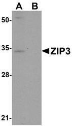 NBP1-76500 - Zinc transporter ZIP3 / SLC39A3