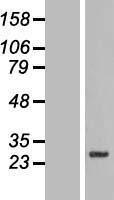 NBL1-16146 - SLC39A3 Lysate