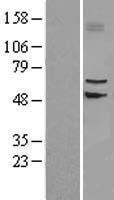 NBL1-16147 - SLC39A4 Lysate