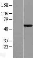 NBL1-16149 - SLC39A5 Lysate