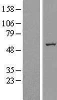 NBL1-16150 - SLC39A7 Lysate