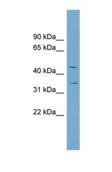 NBP1-59601 - Zinc transporter ZIP8 / SLC39A8