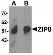 NBP1-76505 - Zinc transporter ZIP8 / SLC39A8