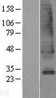 NBL1-16152 - SLC39A9 Lysate