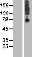 NBL1-16156 - SLC41A3 Lysate