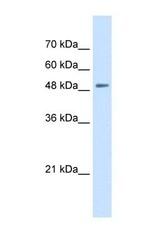 NBP1-59373 - SLC43A2 / LAT4