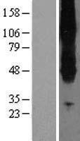 NBL1-16158 - SLC43A2 Lysate