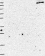 NBP1-92406 - AE3 / SLC4A3