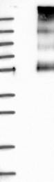 NBP1-87021 - SLC5A6 / SMVT