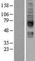 NBL1-16175 - SLC5A6 Lysate