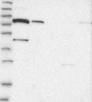 NBP1-88641 - SLC6A12