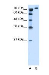 NBP1-59903 - SLC6A18 / XTRP2